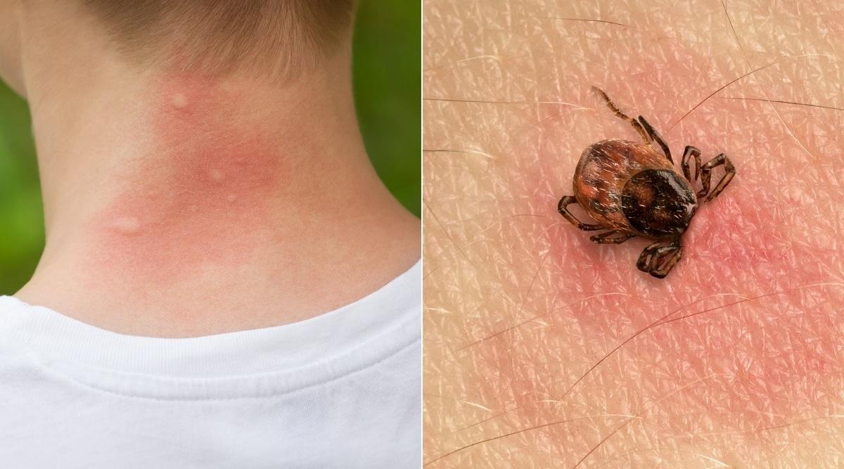 Mosquito and Tick Bites
