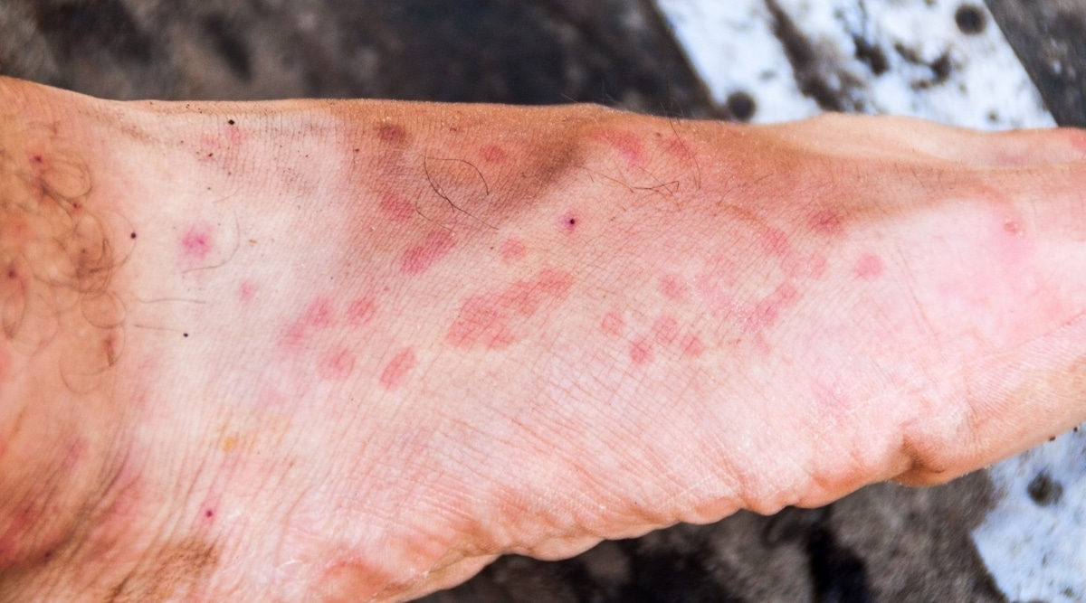 Scabies Bite on Feet