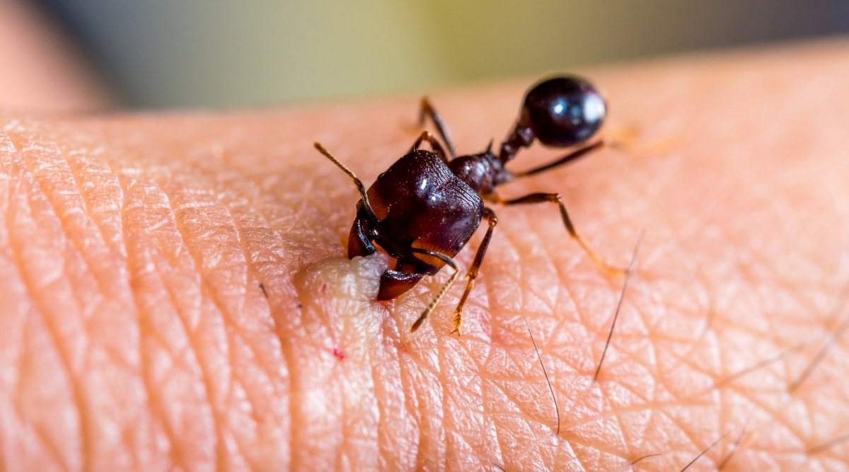 Ant Biting Human Hand