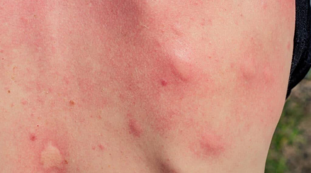 Mosquito Bite on Human Skin
