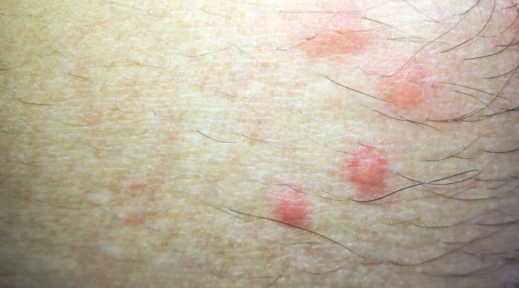 Flea bitten skin of man