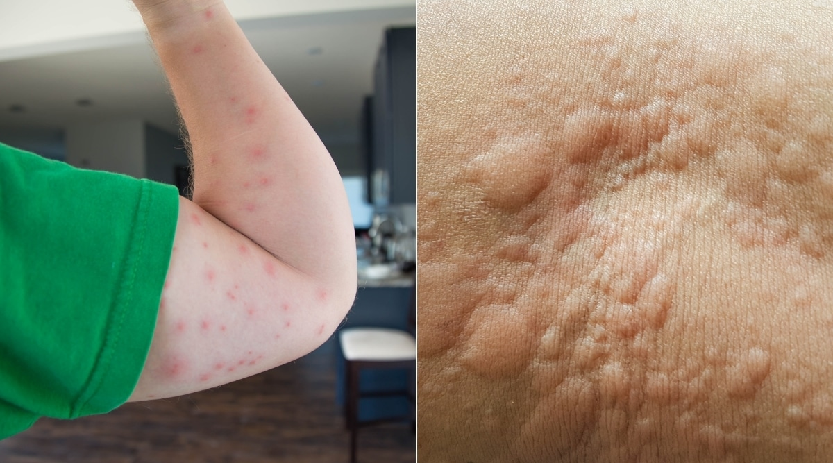Bed Bug Bites and Urticaria