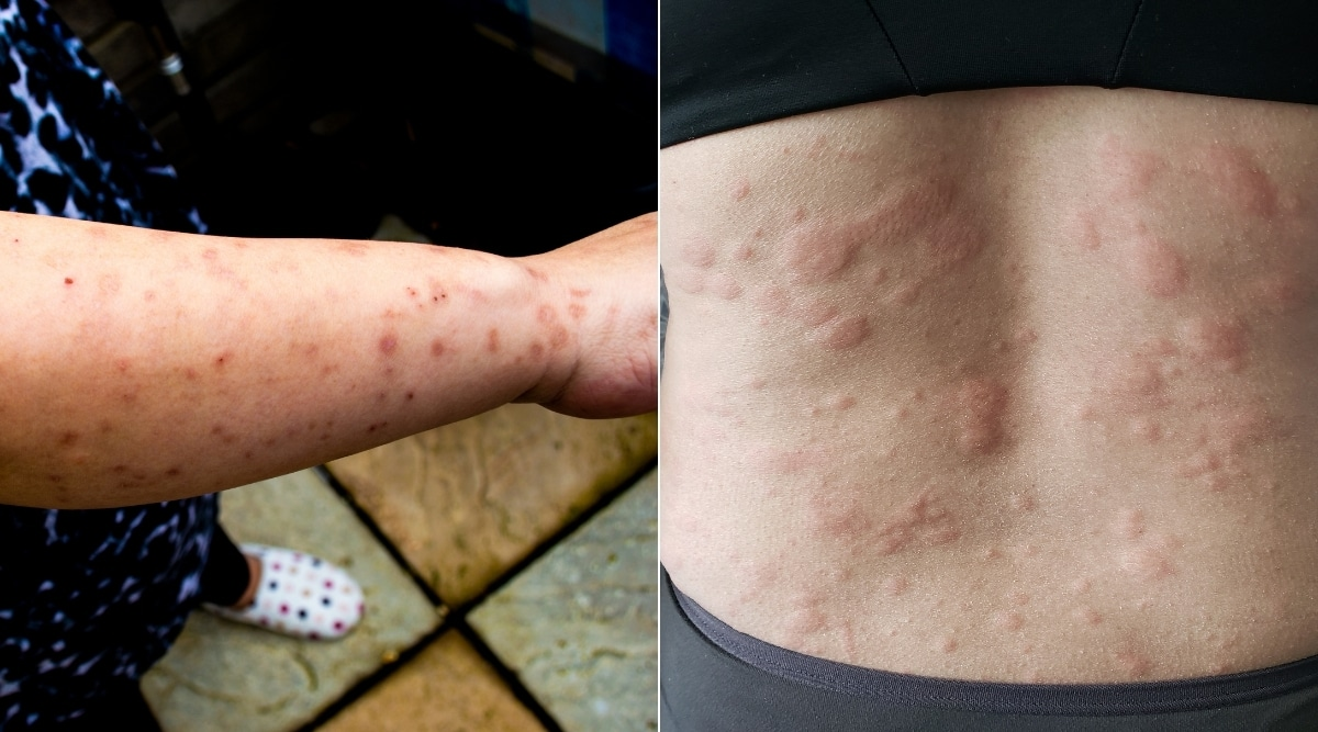 Bed Bug Bites vs Hives