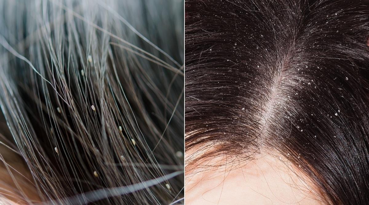 Head Lice vs Dandruff Close Up