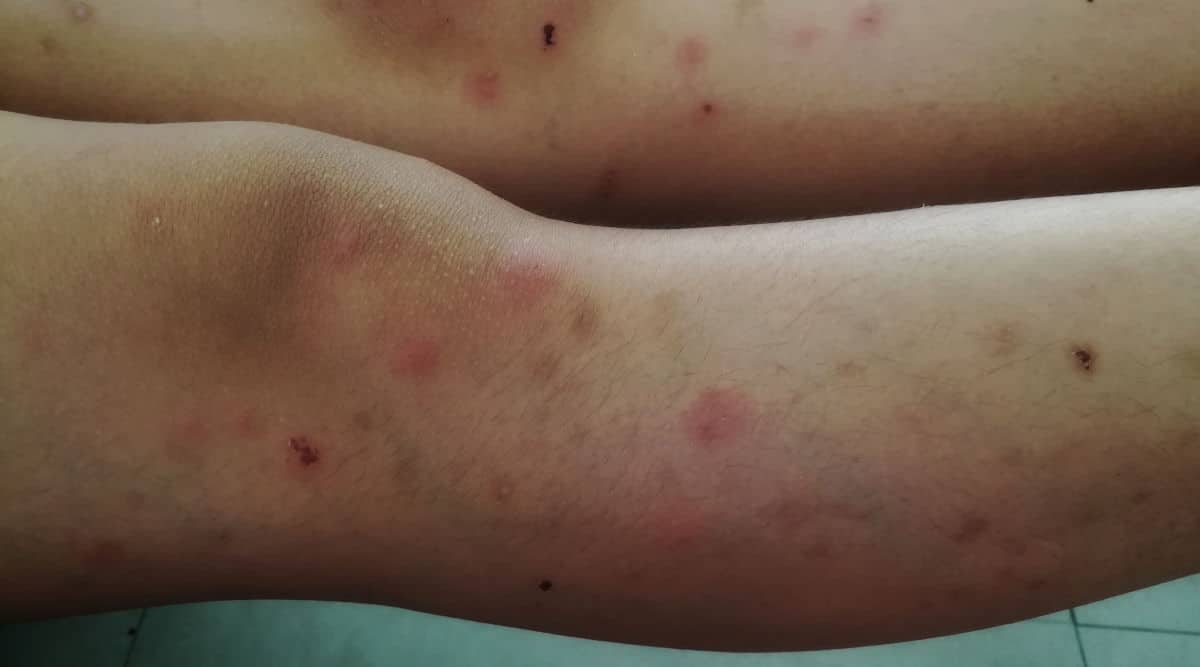 Human legs all covered in insect bites
