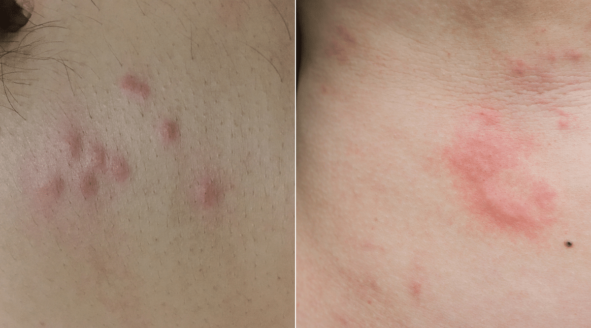 Raised Red bumps on Human Skin