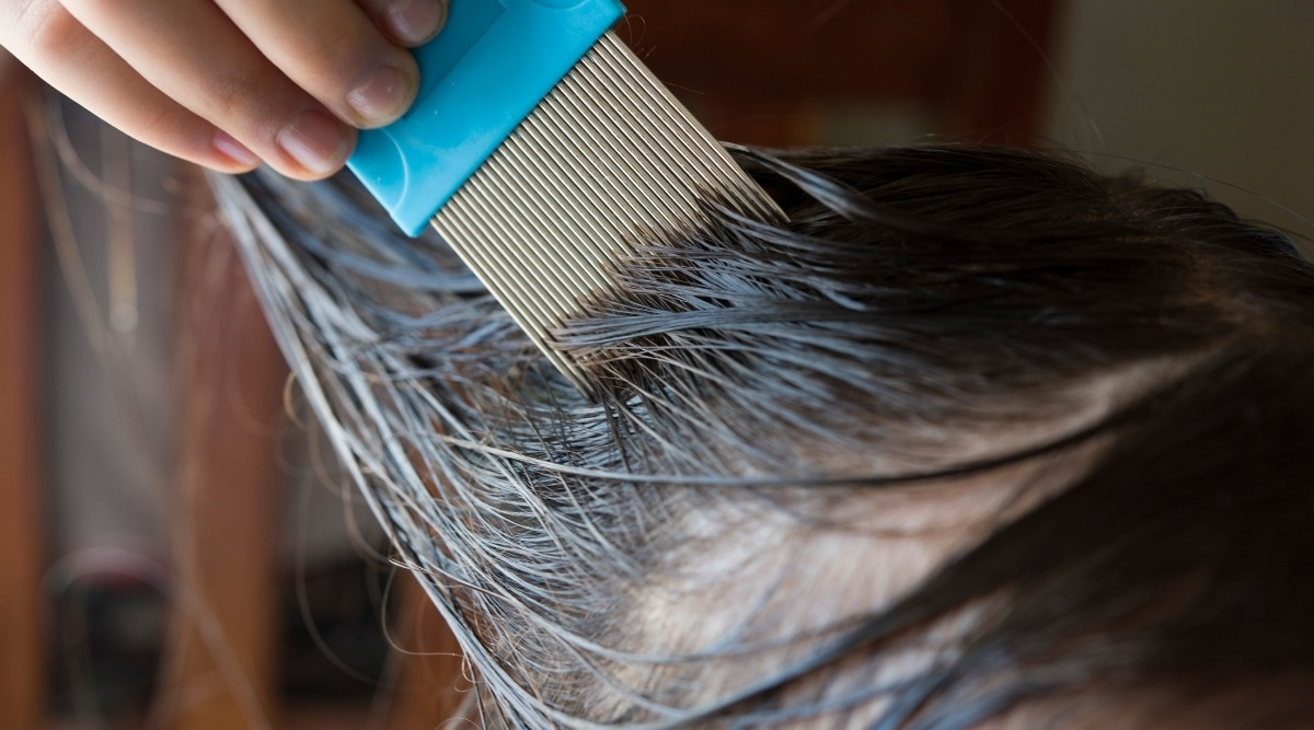 Treating Lice with Nit Comb