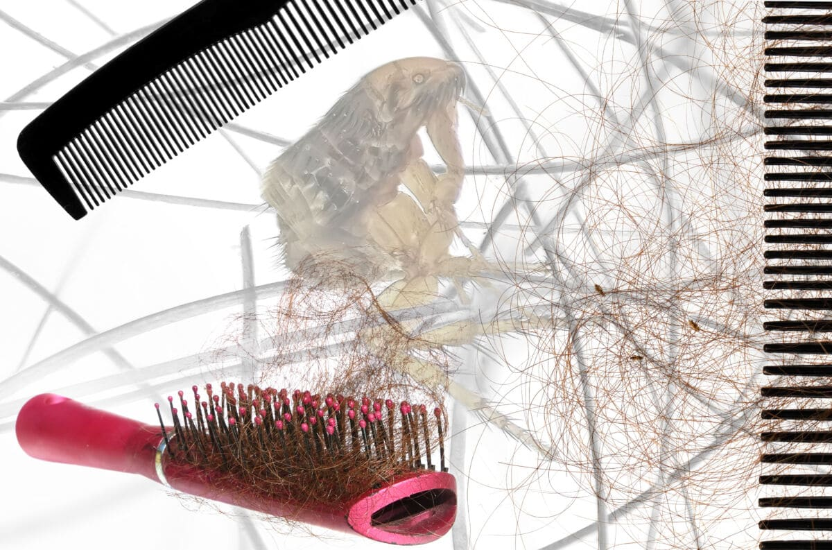 Collage of a bruh, comb, some hair and a magnified head louse