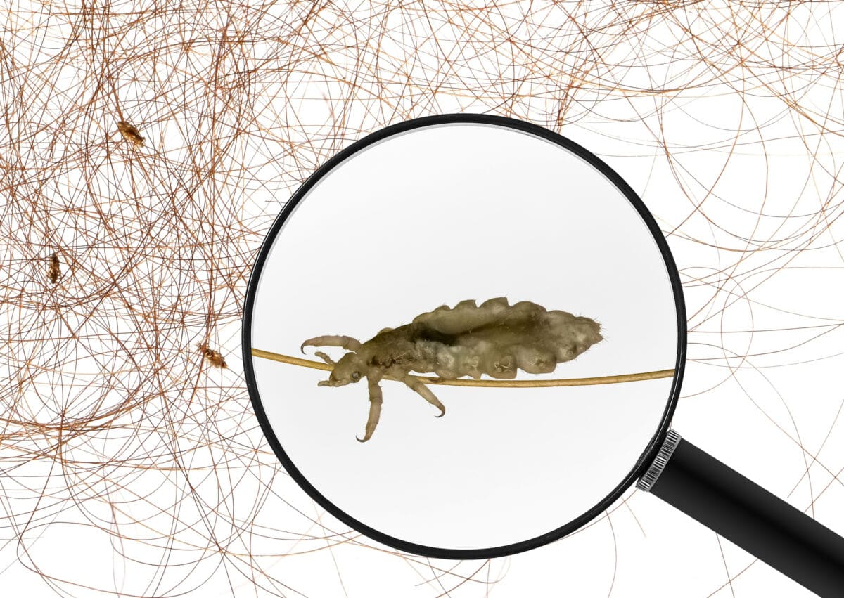 head lice under magnifying glass