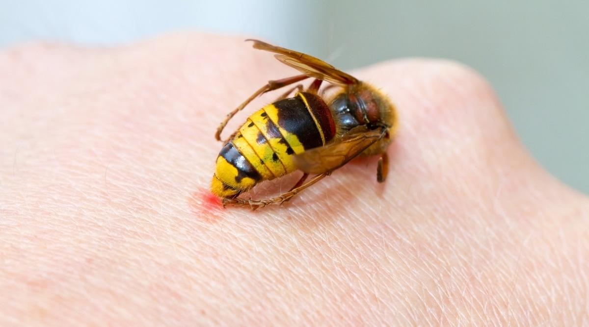 Hornet Stinging Hand