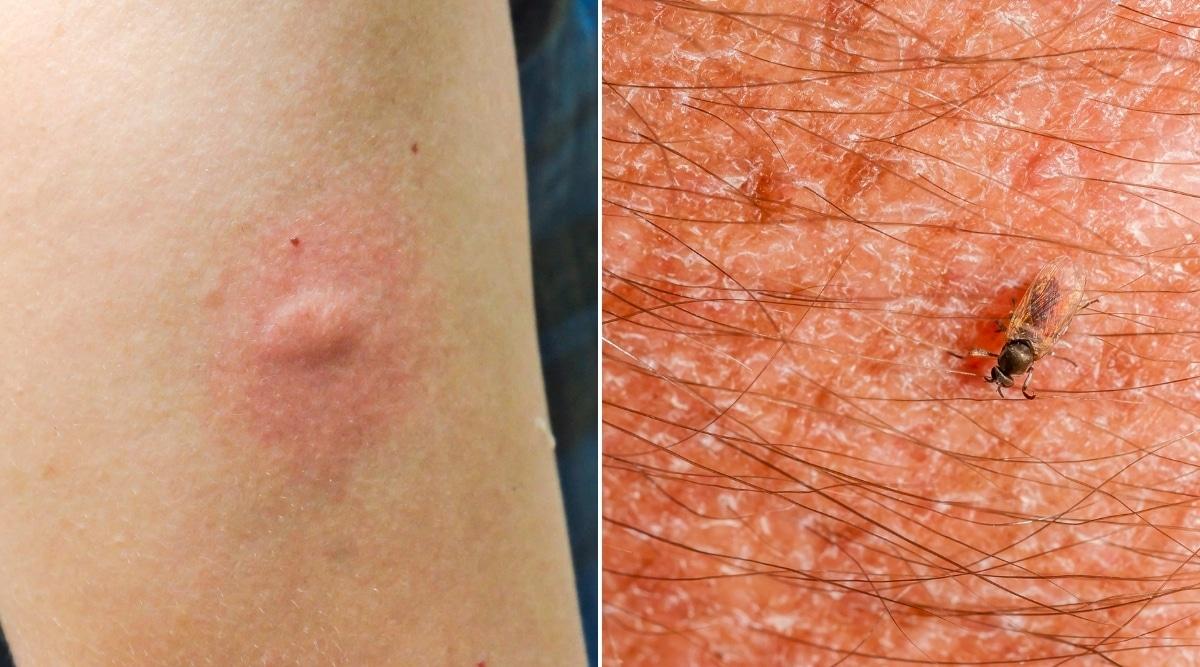 Bite Comparison of Mosquito and Gnat
